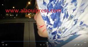 الإعتداءات الجسدية واللفظية على الأطر الطبية والشبه طبية بقسم المستعجلات CHU فاس في تصاعد مهول